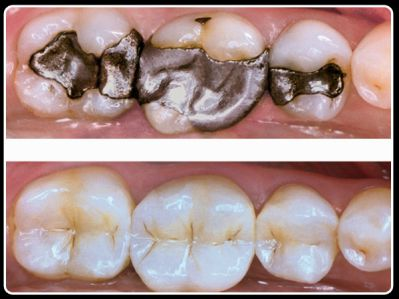 Amalgam, white filling, composite resin