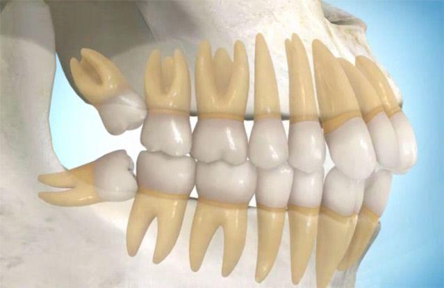 Impacted wisdom teeth, wisdom teeth