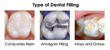 dental_fillings1