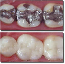 dental_fillings2