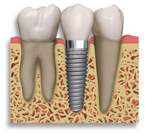 dental_implant01