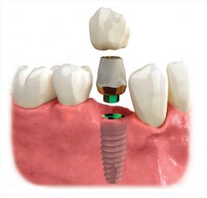 dental_implant02