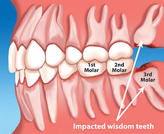 wisdom_tooth_clinic