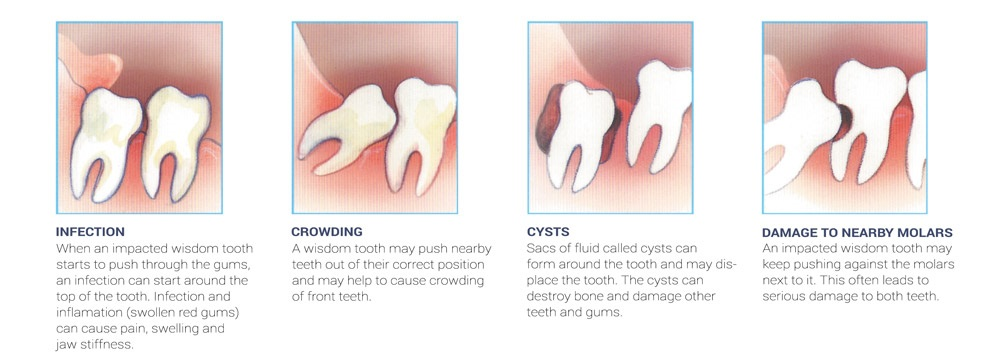 wisdom_teeth_causes